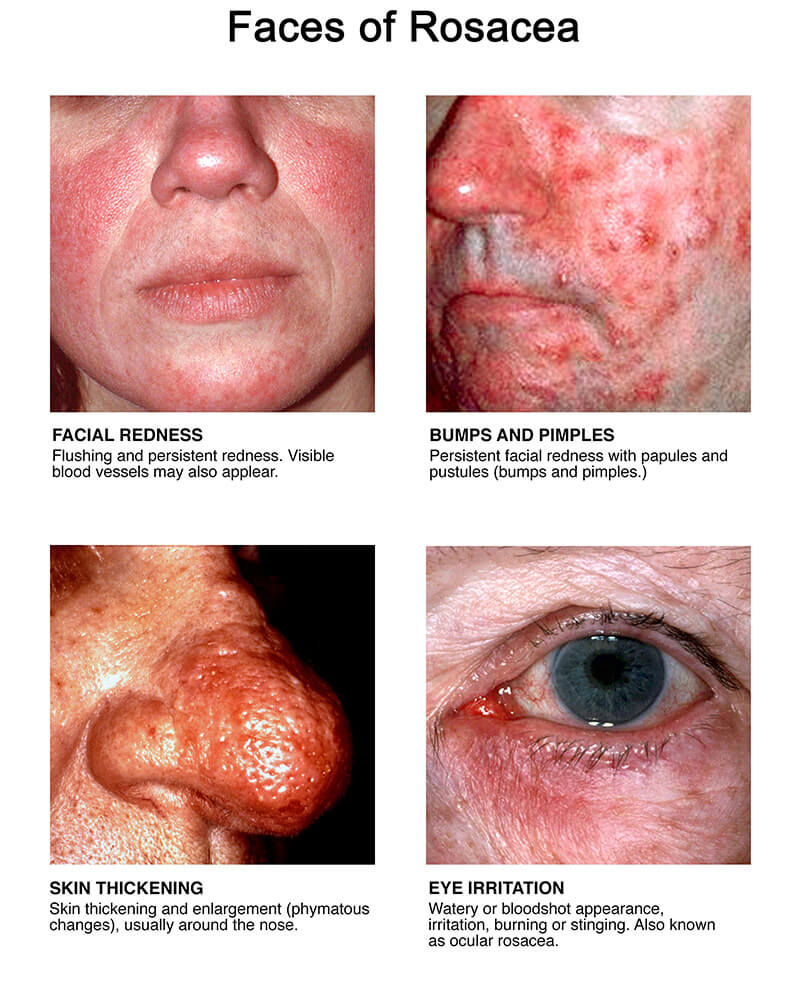 faces of rosacea