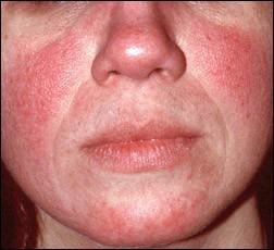 Watch How to Avoid Rosacea Triggers video