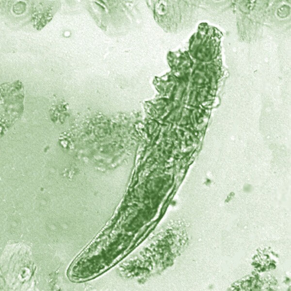Demodex folliculorum mites