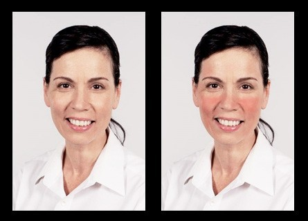 Photo of model with clear skin and simulated rosacea symptoms that was used in the general population survey.