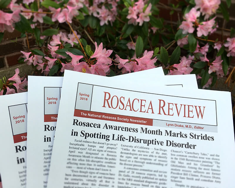 Rosacea Review Spring 2018