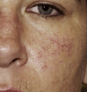 steroid induced rosacea recovery