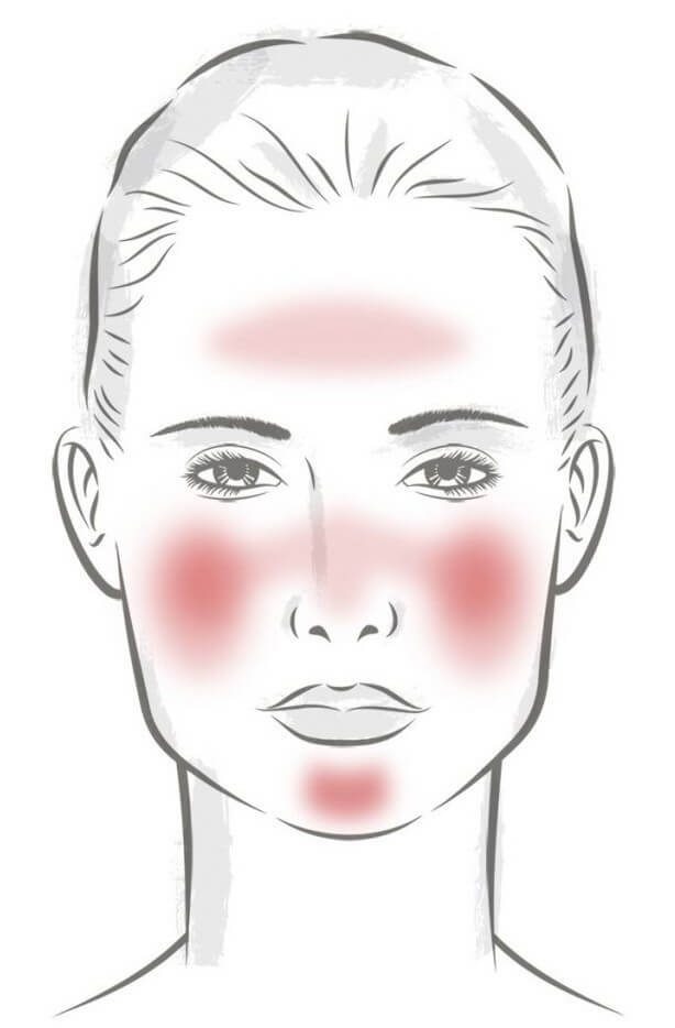 the female face of rosacea