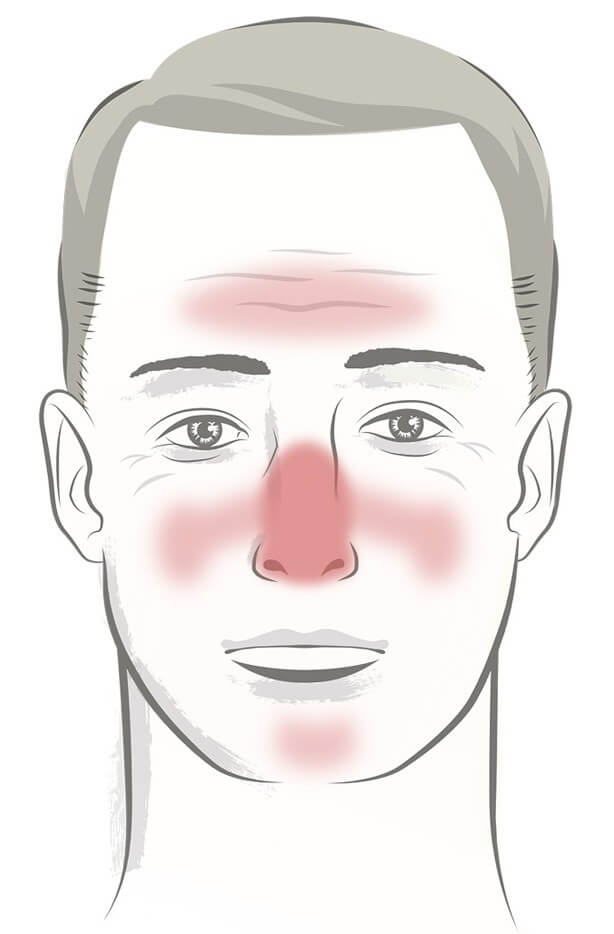 the male face of rosacea