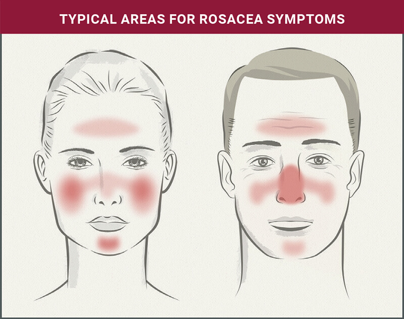 Understanding Rosacea: Typical Areas for Rosacea Symptoms
