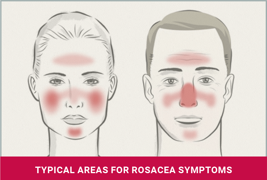 typical areas for rosacea symptoms