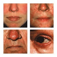 an introduction to the issue of acne Acne, which can occur from anywhere on the face, chest, neck, shoulders and upper arms, on the back, scalp and even on the legs, is a result of several related issues.