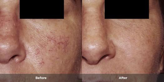 Rosacea Treatment Photos Rosacea Org