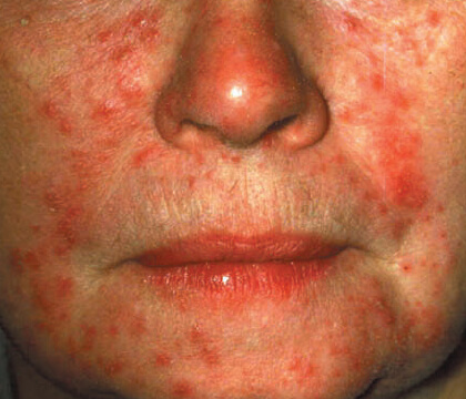 Understanding Rosacea: bumps and pimples