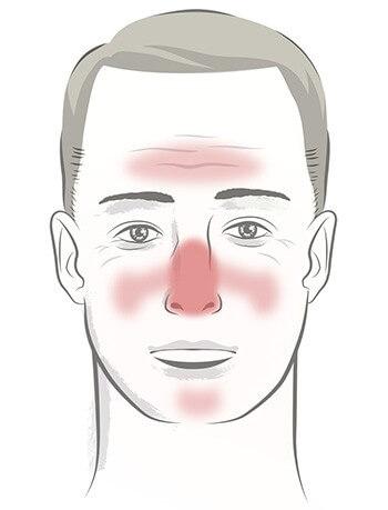 Men With Rosacea Face Different Symptoms Rosacea Org
