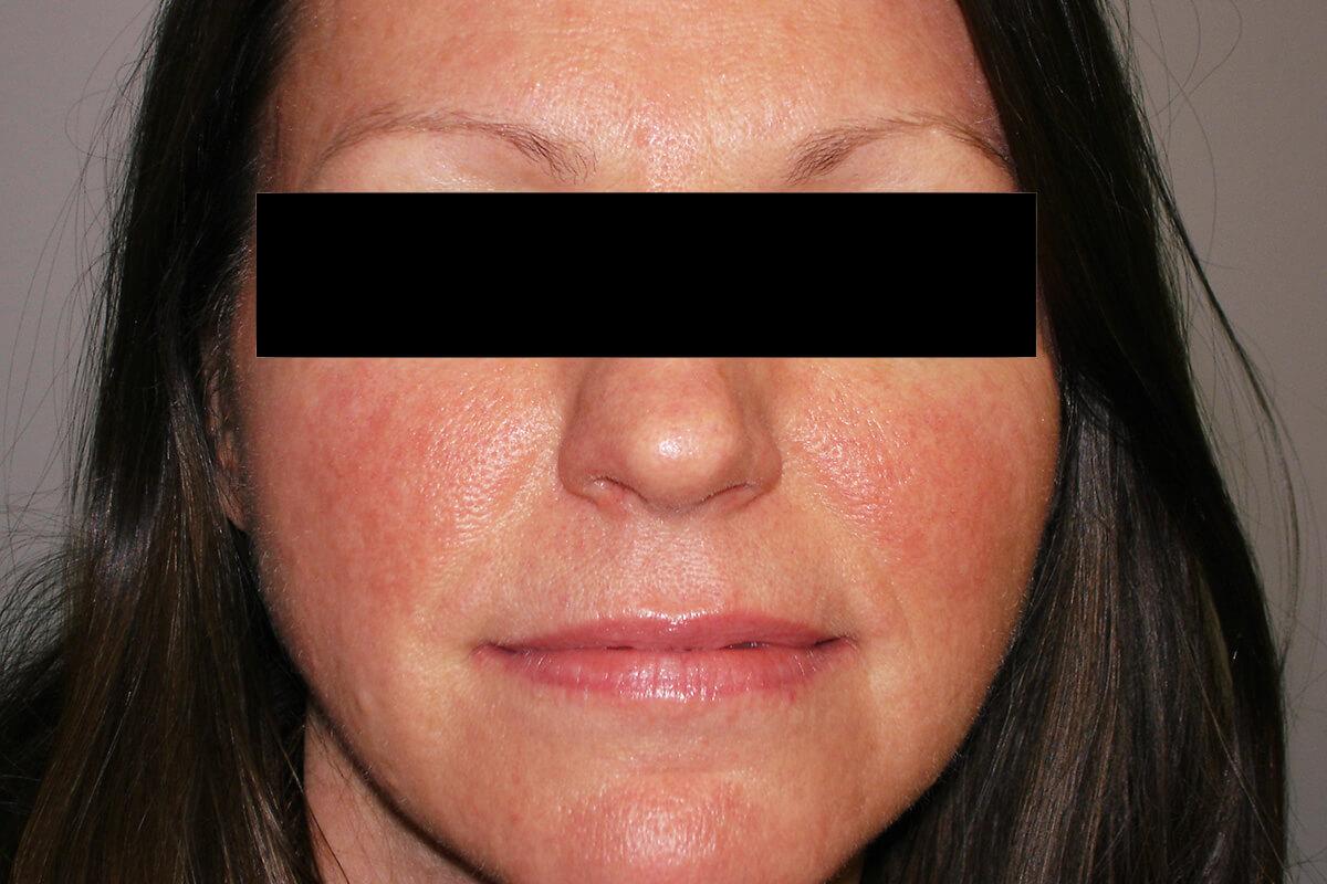 facial erythema