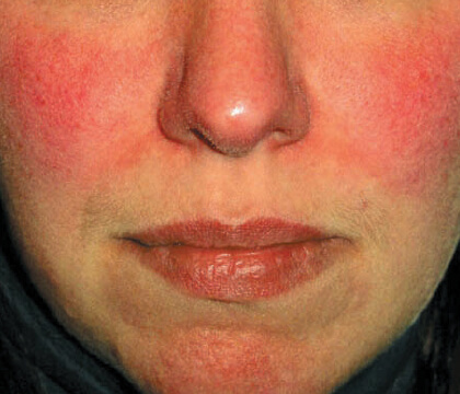 Understanding Rosacea: facial redness