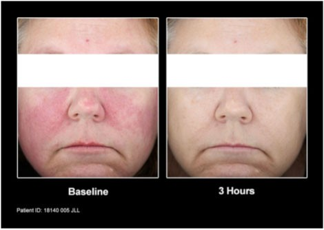 Patients from the clinical trial before and after treatment with Mirvaso Gel.