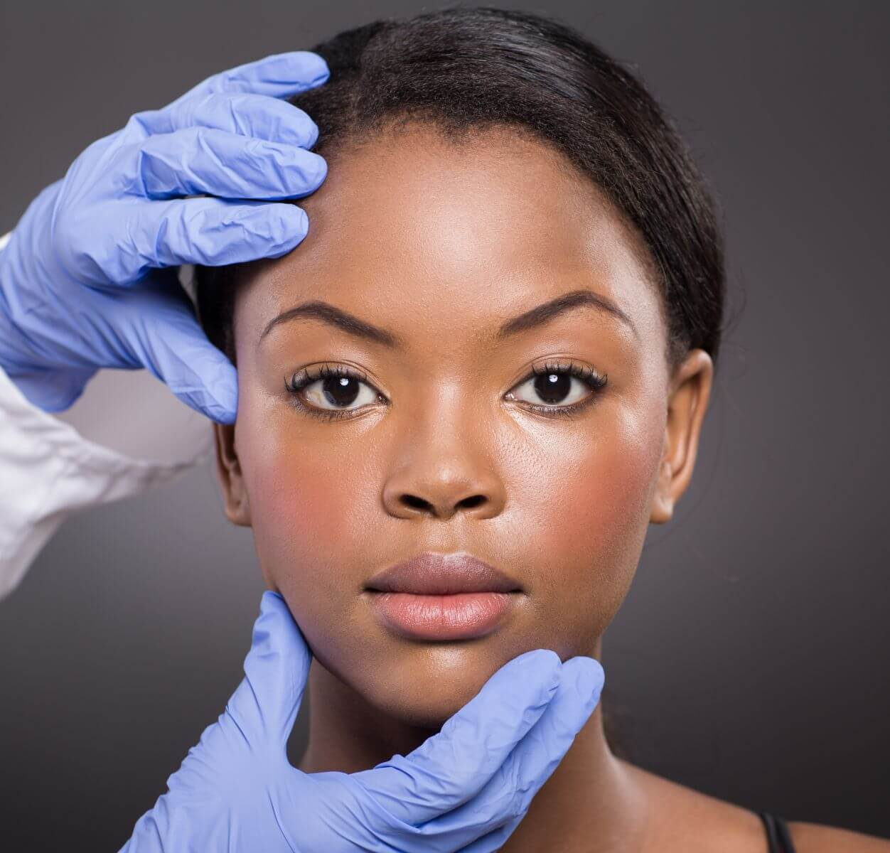 Diagnosing Rosacea In Darker Skin Can Often Be Difficult Rosacea Org