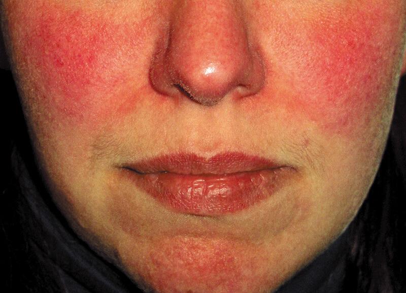 persistent facial erythema