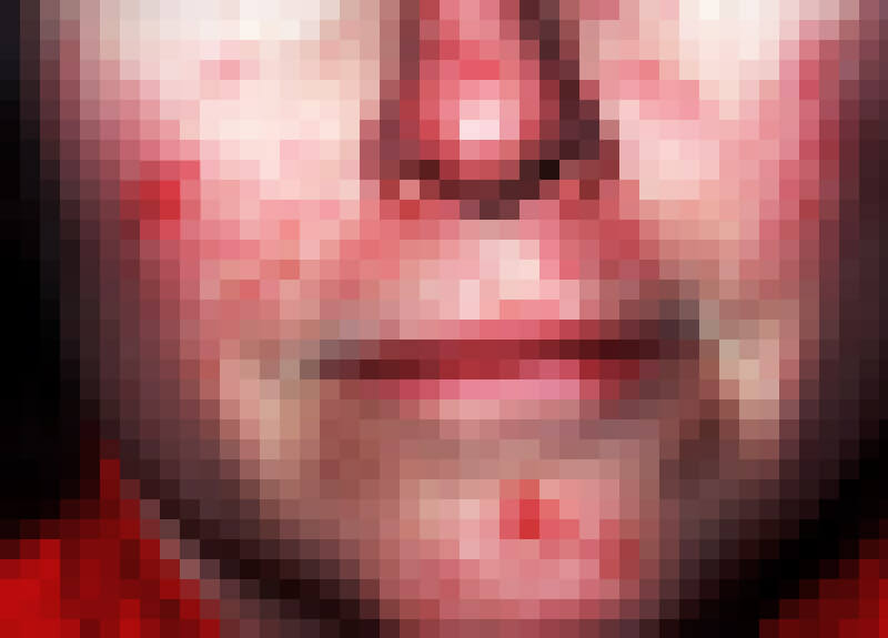 pixelated face with rosacea
