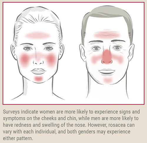 common patterns of rosacea redness