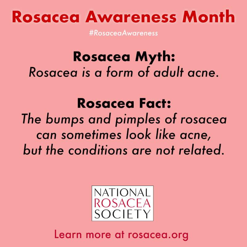 Rosacea Myth: Acne
