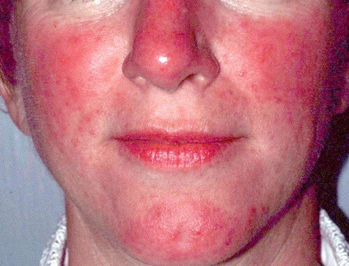 Rosacea in men