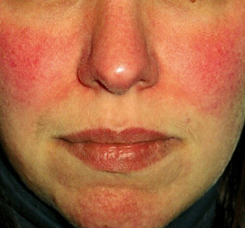 Survey Shows Facial Redness Takes Emotional Toll Rosacea Org