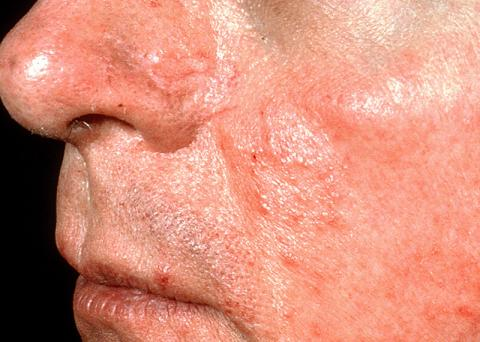 rosacea patient with telangiectasia